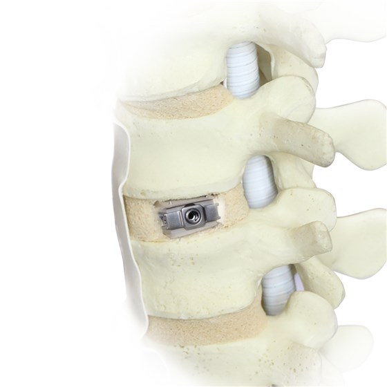 Uplifter™ Expandable Anterior Lumbar Interbody Fusion Device was demonstrated in a hands-on live  workshop in Shanghai. © Fule